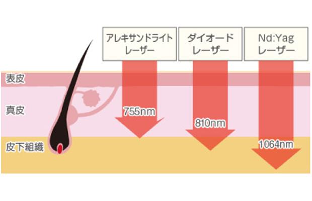 レーザーの種類と到達深度