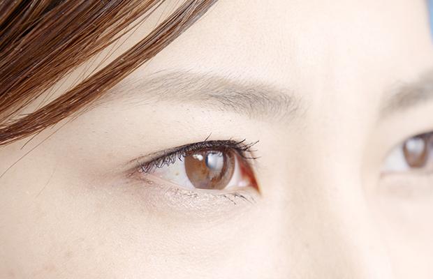 【目の整形編・概要】美容外科/美容皮膚科で働く看護師のオペ介助